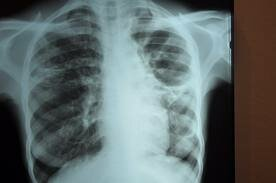 EU Tuberculosis Problems- VIDEO