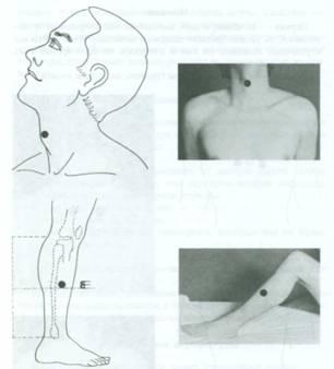 varpos akupunktūra