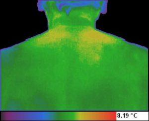 Periartrita scapulohumerala - spondiloza cervicala stadiul 3 iritativ