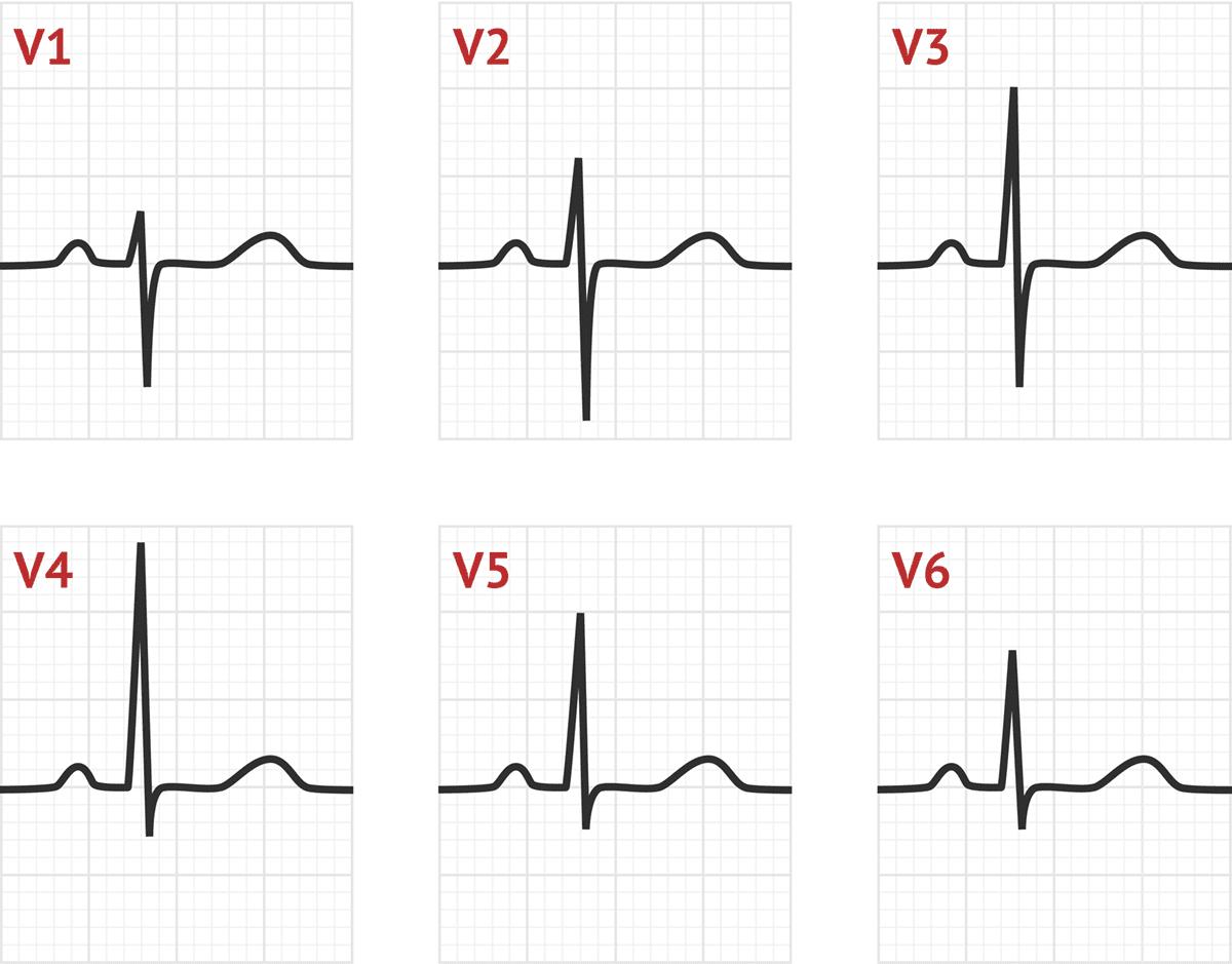 Poor R Wave Progression Tests
