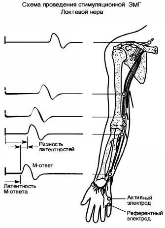 pierderea în greutate a nervului peroneal)