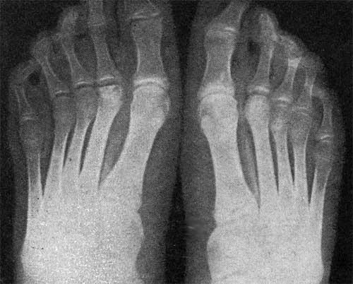 ozokerit, csípőízület artrózisával