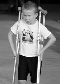 Хондропатия лечение симптомы причины профилактика