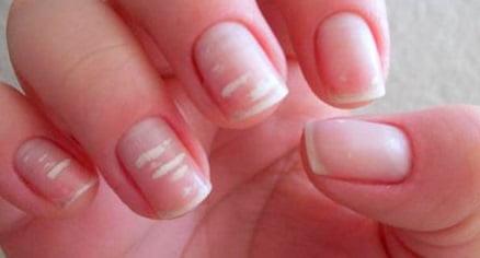 Cu ce se curata carminul de pe unghii
