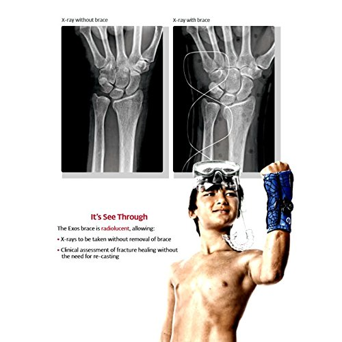 DonJoy-Exos-Boxers-Fracture-Brace-0-0