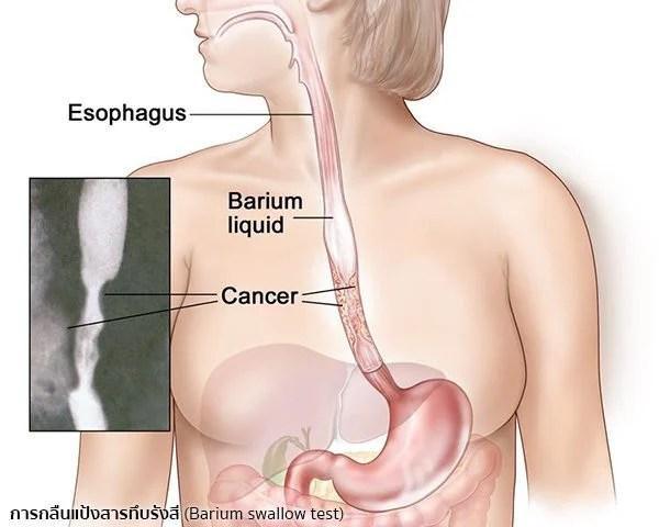 การวินิจฉัยมะเร็งหลอดอาหาร