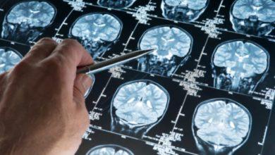 Photo of Кавернома головного мозку: причини, симптоми, лікування