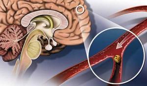 Photo of Що таке атеросклероз судин головного мозку? Лікування, симптоми і причини захворювання.