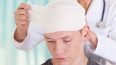 Photo of Забій голови: симптоми, наслідки