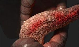 Photo of Загострення хронічного панкреатиту — період яскравих клінічних проявів