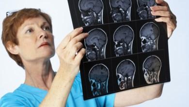 Photo of Серозний менінгіт: причини, симптоми, лікування