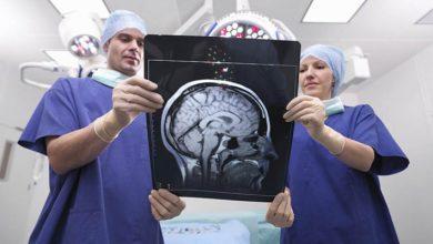 Photo of Портальна гіпертензія: синдром, ознаки, лікування