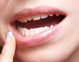 Photo of Стоматит: причини і прояви