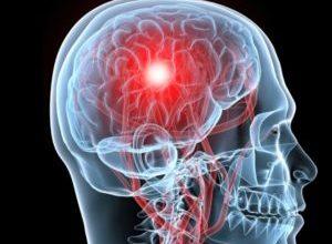 Photo of Важкий і практично невиліковний стовбуровий інсульт: все, що варто знати хворому і рідним