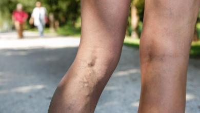 Photo of 7 основних причин болю в ногах