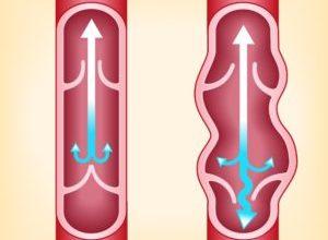 Photo of Як виявляється і лікується клапанна недостатність вен