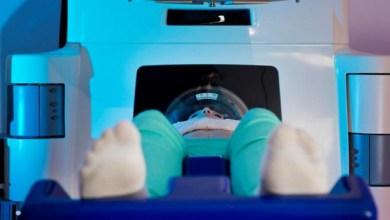 Photo of Коротке за часом опромінення більш ефективно при лікуванні раку шкіри