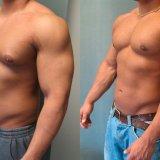 Photo of Чому у чоловіків виявляється гінекомастія