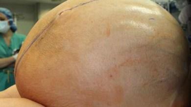 Photo of Лікарі видалили жінці 60-кілограмову пухлину яєчника