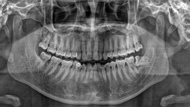 Photo of Панорамний знімок зубів