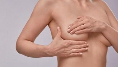 Photo of Щільність грудей є індикатором ризику розвитку раку