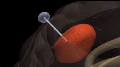 Photo of Нова методика: неоперабельні пухлини мозку будуть ловити на вудку