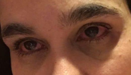 Wat er nou precies aan de hand is met mijn ogen