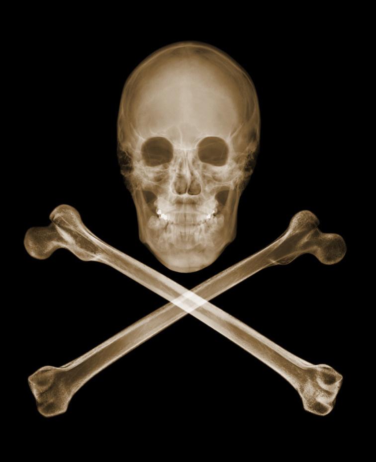 Nick Veasey :: X-Ray Photos (7)