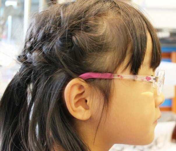 弱視等治療用眼鏡2 保護者了解済