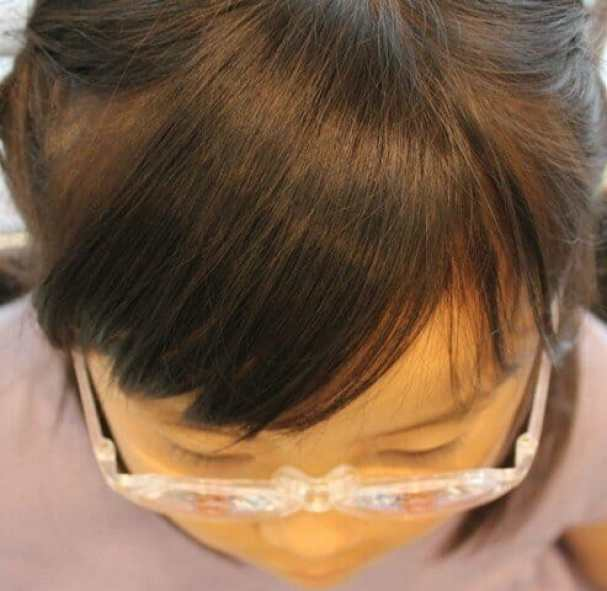 弱視等治療用眼鏡3 保護者了解済