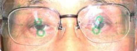 中心の合わない遠近両用メガネ