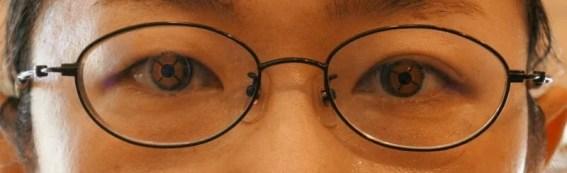 左目プリズム矯正 BO 5.00⊿