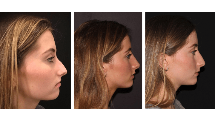 Non-Surgical Nose Job: 1+ Year Later