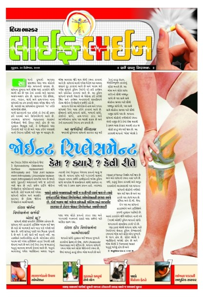 Medical information on joint replacement