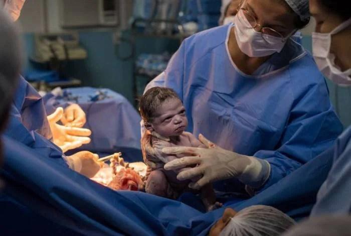 Foi a carinha de Isa logo após parto