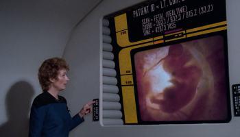 GE apresenta tecnologia de imagens médicas meio Star Trek