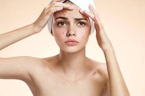 Mascarilla contra el acné agua oxigenada