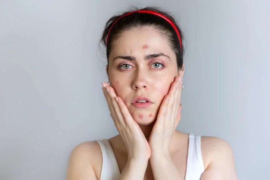 Mujer con problemas de acné