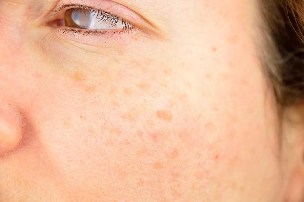 Mujer con manchas en la piel