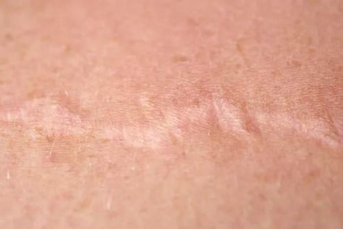 Cicatriz-cebolla