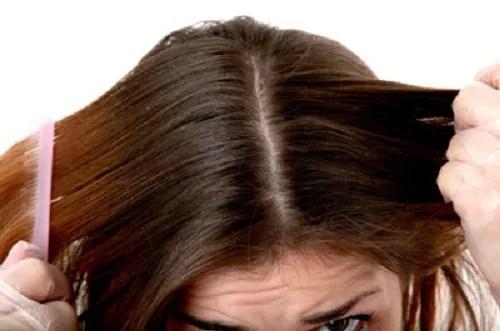 cabello-graso