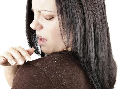 El vinagre de manzana puede ayudar a combatir la caspa