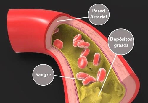 Triglicéridos en sangre.