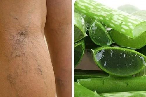 Suplemento natural com aloe vera para tratar úlceras varicosas