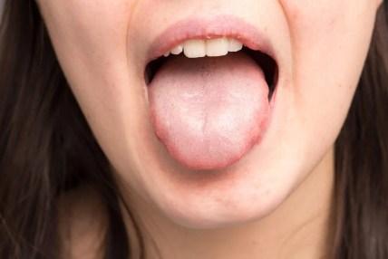 Causas de la saliva espesa