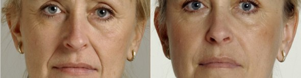 Melbourne Dermal Filler Injections to add volume on facial areas including eyebrows, cheeks and mouth area