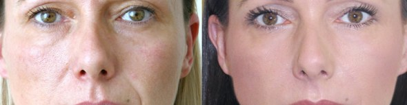 Dermal Filler Injections for eyebrow lift and chin at Melbourne Anti-Wrinkle Injections
