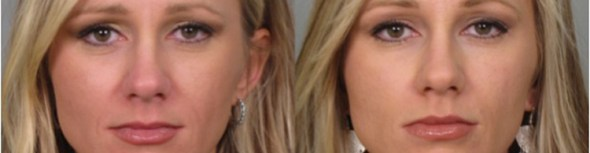 Melbourne Anti-Wrinkle Injections Lip Filler Treatment