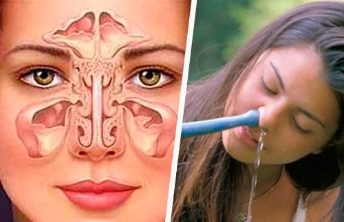 Sinusite: método simples e natural para tratar