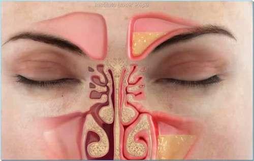 congestao-nasal 5 remédios naturais para a congestão no peito